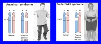 angelman syndrome summary Angelman syndrome is a genetic condition that is present at birth (congenital) common characteristics include intellectual disability, delayed speech, jerky walking style and happy demeanour.