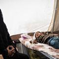 yemen-salgin-weba-felaket-cocuk