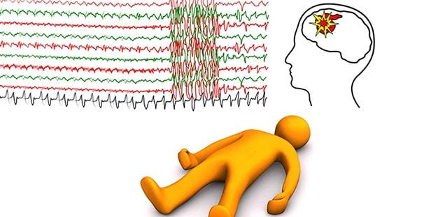 Epilepsi Belirtileri Neden Olur Nasıl Anlaşılır Tedavisi İlaçları