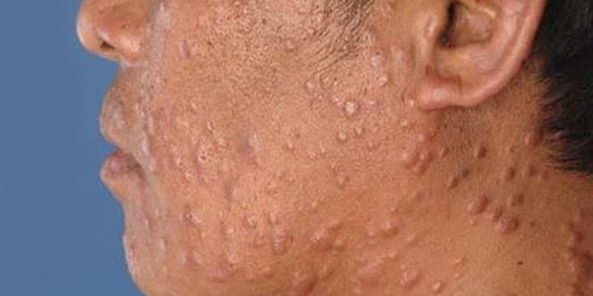 Sifiliz nasıl bulaşır: hastalığın nedenleri, semptomları ve tedavisi