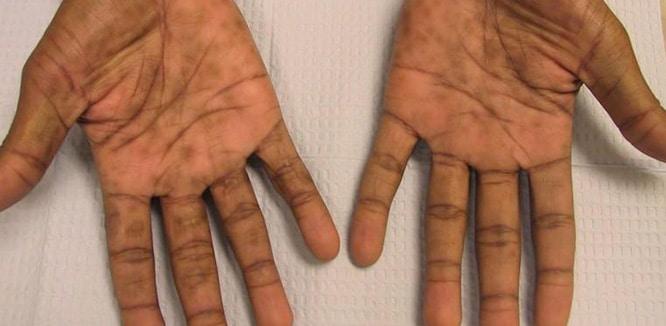 Frengi Nedir Sifiliz Hastaligi Nasil Bulasir Belirtileri