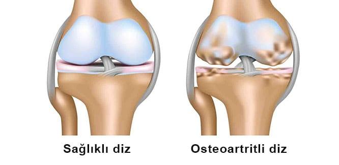 artroză tratament spitalicesc tratamentul articular al oaselor