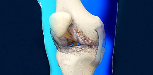Kireclenme-osteoartrit-kemik-diz-ortopedi