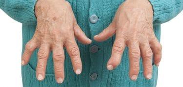 Romatoid artrit, el