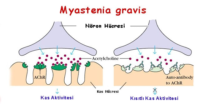Myastenia gravis