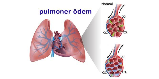 Pulmoner ödem