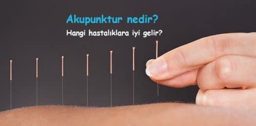 akupunktur-acupuncture-2