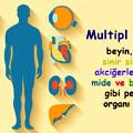 Multipl-Skleroz-ms-beyin-organlar-6