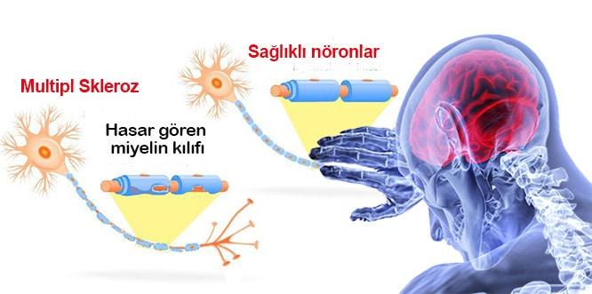 Multipl Skleroz Tedavisi Ve Ms Hastalığı Ile Yaşama Rehberi