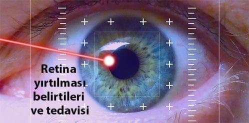 goz-retina-kataract-ameliyat-2b