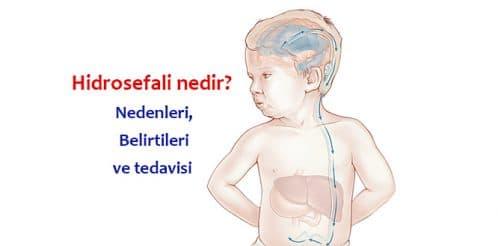 hidrosefali-hydrocephalus-cocuk-beyin-1