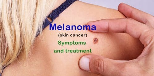melanom-skin-cancer-1