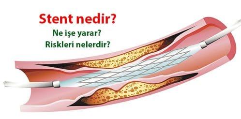 kalp-damar-stent-2
