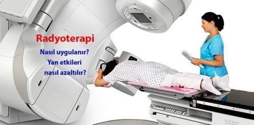 radiotherapy-radyoterapi-kanser-mr-3b