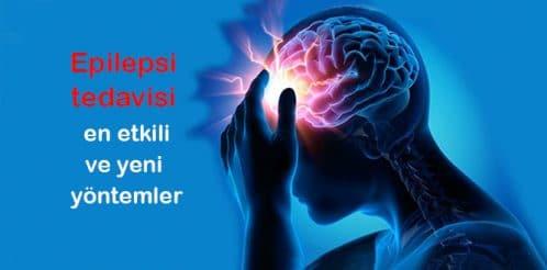epilepsi-kafa-beyin-tedavi-2