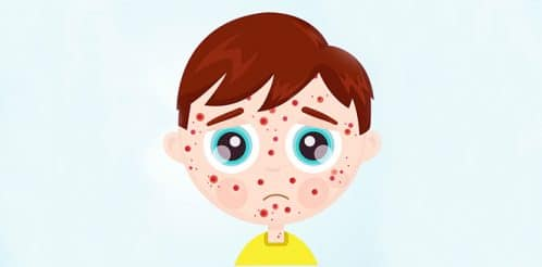 measles-rubeola-rash-kizamik-5
