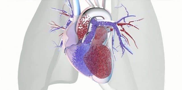 Pulmoner Hipertansiyon Nedir Nedenleri Belirtileri Ve Tedavisi