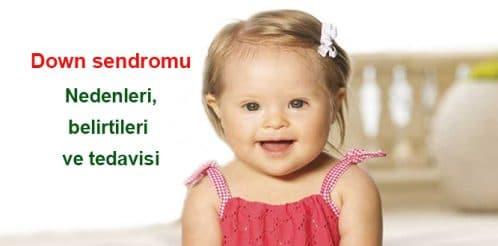 down-syndrome-sendromu-cocuk-otizm-1