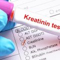 kreatinin-creatinine-test-2