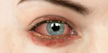 goz yanmasi nedenleri ve tedavisi