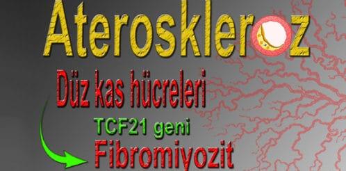 ateroskleroz-kalp-krizine-1