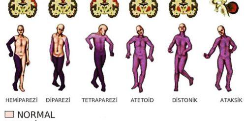 serebral-palsi-tipleri