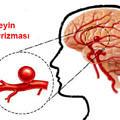 Anevrizma-beyin-Aneurysm-4