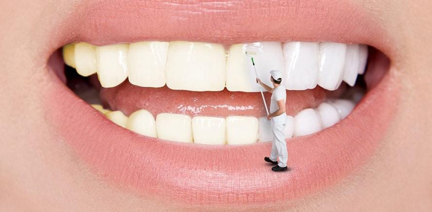 Diş taşı neden olur? Nasıl temizlenir ve önlenir? Zararları nelerdir?